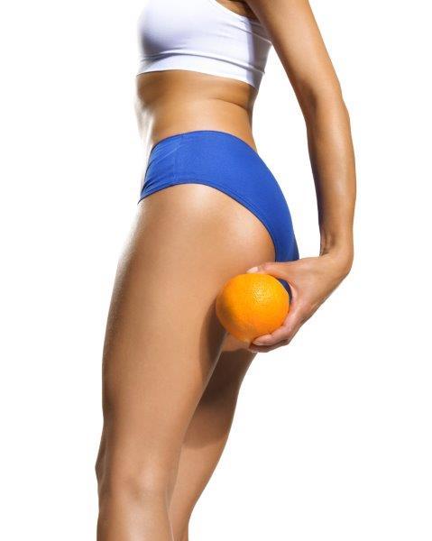 Cellulit, czyli skórka pomarańczowa występuje także u osób szczupłych.