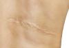 blizna na plecach