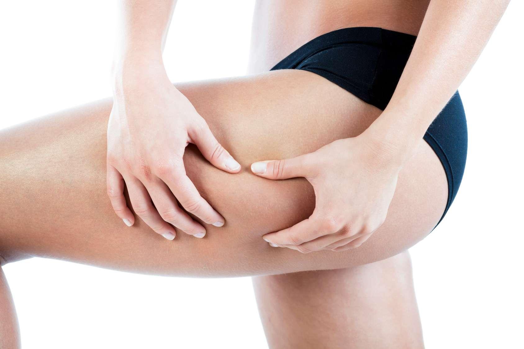 Jak wyeliminować cellulit