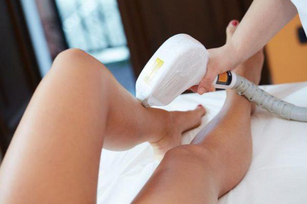 Podczas depilacji laserowej nóg