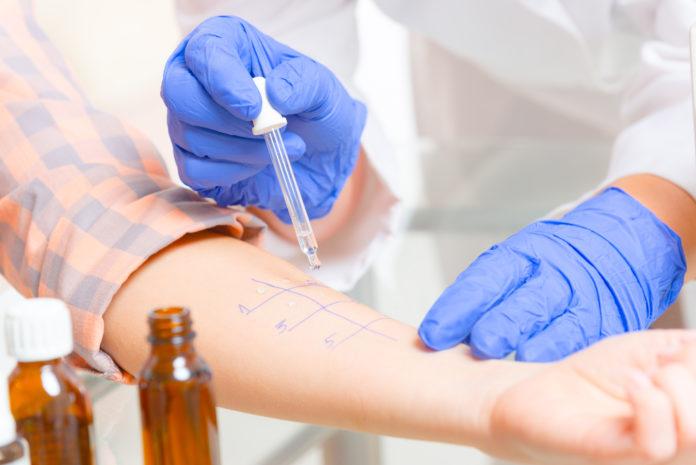Testy alergiczne w laboratorium