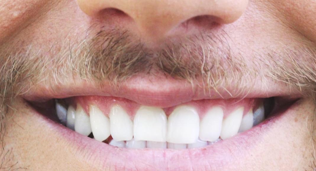 wybielanie zębów we Wrocławiu