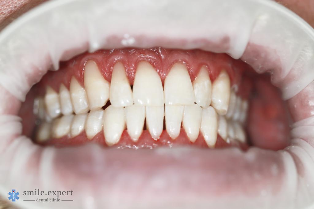 Zabieg wybielania zębów